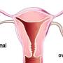 Chistul ovarian: tipuri, cauze, simptome, prevenție